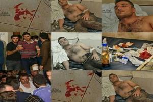 """تصویر از جنایت تروریست ها و سکوت معنا دار شبکه مدعی حقوق بشری""""روداو""""+تصاویر"""
