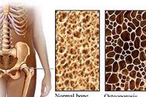 تصویر از پوکی استخوان شایعترین بیماری دوران سالمندی/ عوامل بروز پوکی استخوان را بشناسید