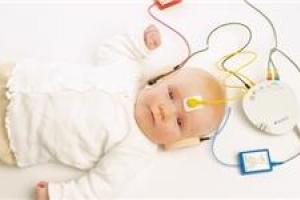 تصویر از چالشهای پیش روی غربالگری شنوایی/ ضرورت ارزیابی شنوایی نوزادان