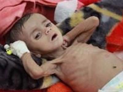 تصویر از کمیته بینالمللی صلیب سرخ: وضع فاجعهبار انسانی، مردم یمن را به زانو درآورده است