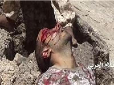تصویر از افزایش تلفات نظامیان سعودی در جنوب عربستان