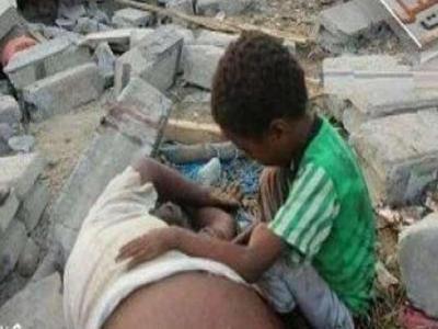 تصویر از محقق مصری: ریختن خون مسلمانان یمن قابل تحمل نیست