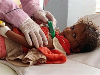 تصویر از یونیسف: حمله عربستان به الحدیده جان ۳۰۰ هزار کودک را تهدید میکند