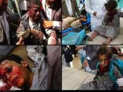 تصویر از کسب و کار ائتلاف سعودی با مرگ یمنیها