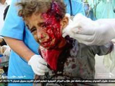 تصویر از تعداد تلفات حمله هوایی به صعده به ۵۲ نفر افزایش یافت