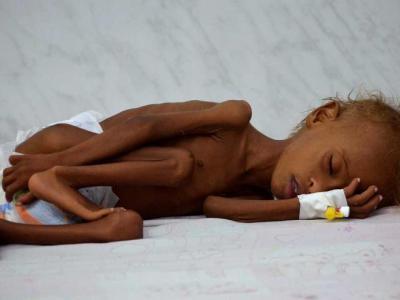 بسته شدن بندر الحدیده جان میلیونها کودک یمنی را با بحران مواجه خواهد کرد