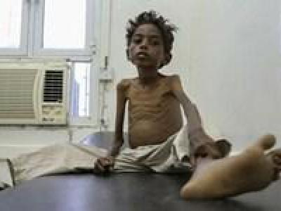 بیش از پنج میلیون کودک یمنی در معرض قحطی هستند
