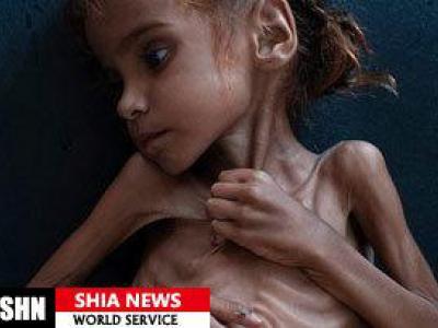 تصویر از دختربچه نماد درد و رنج مردم یمن درگذشت