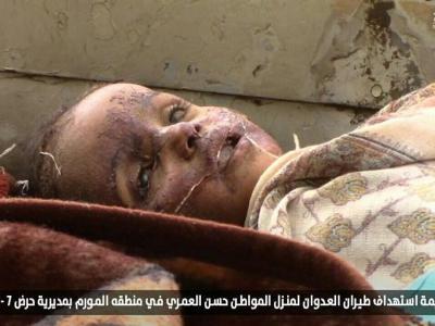 تصویر از شهادت ۷ عضو یک خانواده یمنی در حملات عربستان
