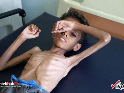 تصویر از سوءتغذیه کودک ۱۰ ساله یمنی (۱۶+)
