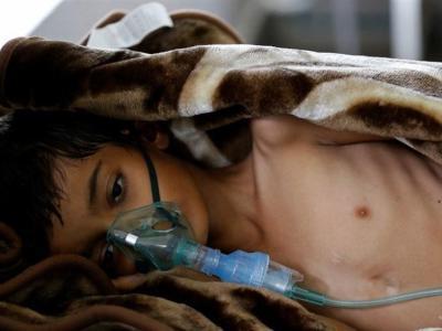 """تصویر از روایت دردناک """"دویچه وله"""" آلمان از درد و رنج بی پایان مردم مظلوم یمن"""