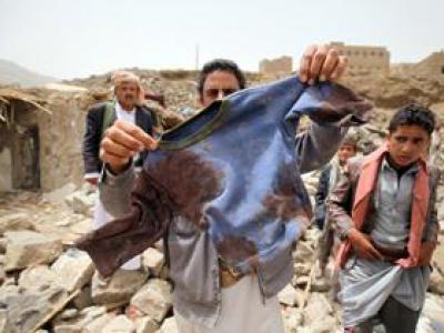تصویر از شمار قربانیان جنگ یمن شش برابر برآوردهای رسمی سازمان ملل است