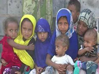 تصویر از افزایش شمار کودکان مبتلا به سوء تغذیه در یمن + فیلم