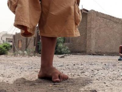 تصویر از درخواست فعالان و نهادهای حقوقی برای توقف تجاوز به یمن