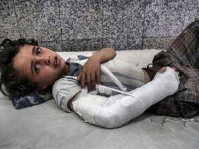 تصویر از هر ۱۰ دقیقه یک کودک در یمن جان میدهد