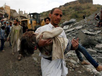 تصویر از مروری بر مداخله بیرحمانه و خونین عربستان و آمریکا در یمن