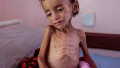تصویر از سازمان بهداشت جهانی: ۳۵ هزار یمنی مبتلا به سرطان، با خطر مرگ رو بهرو هستند