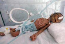 تصویر از ابتلای ۴۰۰ هزار کودک یمنی به سوء تغذیه شدید در نتیجه حملات عربستان