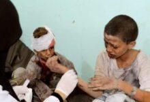 تصویر از صنعاء: در ۱۷۰۰ روز جنگ، ۸۰۰ کودک معلول شدهاند