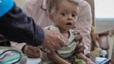 تصویر از هفت هزار کودک یمنی قربانی جنگ شدهاند