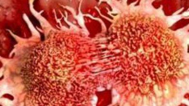 تصویر از علائم سادۀ هشداردهنده سرطان/ اینفوگرافیک